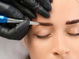 No.1 Eyebrow Hair Transplant Clinic in Gurukul, Ahmedabad