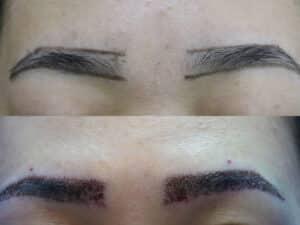 Eyebrow Transplant Procedure & Result