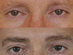 Eyebrow hair transplant Result