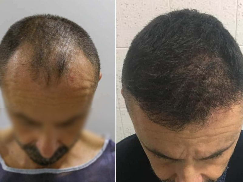 Hair transplant doctor in Gota