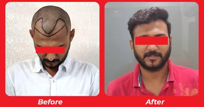 Natural look hair transplant in Prahlad Nagar,Gota, Bodakdev , Chandkheda , Gujarat , India