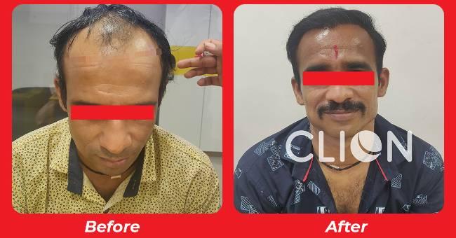 Hair transplant clinic in Gujarat , Hair Treatment in Gujarat , Hair transplant side effects in Anand,Navsari,Morbi,Nadiad