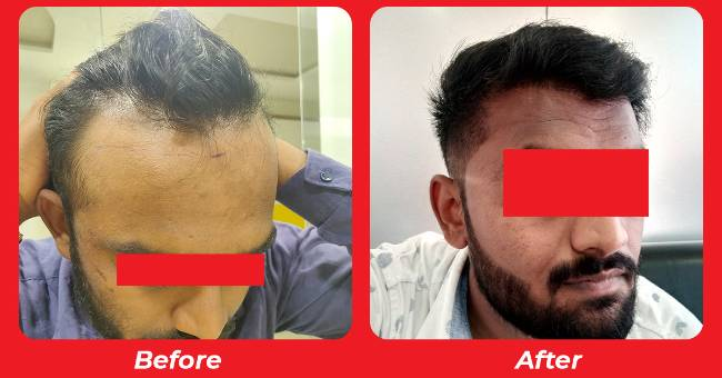 Best doctor for hair transplant in Ahmedabad , Hair specialist doctor in Surat
