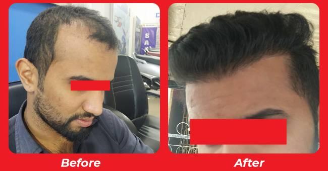 Hair Transplant in Gujarat , Hair thining solutions , PRP hair treatment in Rajkot, Gujarat, India