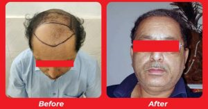 Hair transplant cost,Hair replacement surgery, Hair Transplant results in Surendranagar,Bharuch,Mehsana,Bhuj, Gujarat , India
