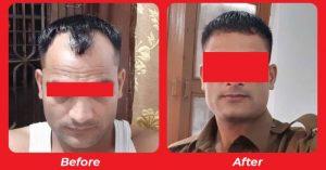 Bio Fue Hair Transplant Treatment in Nadiad
