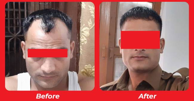 Hair loss treatment in Ahmedabad , Bio Fue Hair Transplant Treatment in Nadiad