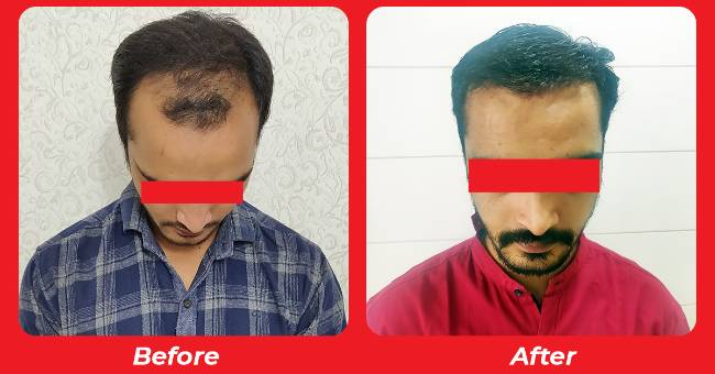 hair transplant in Males , Bio Fue Hair Transplant Treatment in Gujarat , India