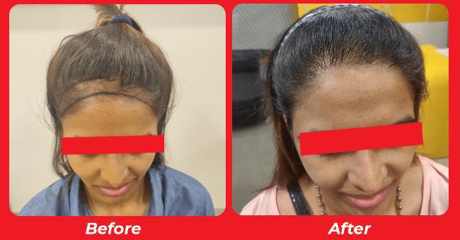 Natural look hair transplant Clinic in Gota, Ahmedabad, Gujarat