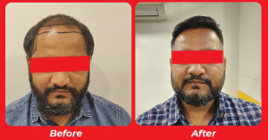 Hair replacement surgery Result