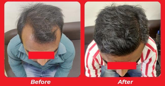 Hair Transplant in Bopal, Ahmedabad, Gujarat