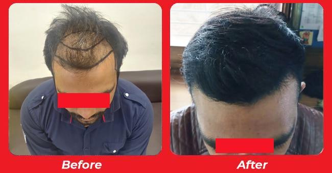 Hair Transplant results, Hair Treatment in Bapunagar, Gujarat