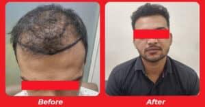 best Hair Specialist doctor in South Bopal, Ahmedabad, Gujarat