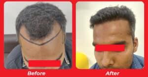 No.1 Hair loss treatment in Kakaria, Ahmedabad