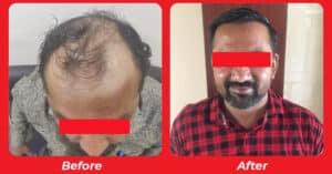 Best Hair replacement surgery in Makarba, Ahmedabad, Gujarat