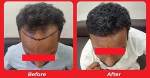 Non-Surgical Hair Replacement Service in Bopal, Ahmedabad
