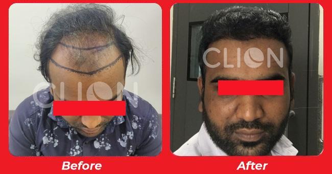 Hair Transplant results in Chandkheda, Gujarat, india