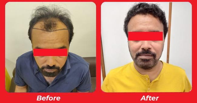 No.1 Hair transplant cost in SG Highway, Ahmedabad, Gujarat